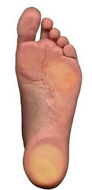 Latham Podiatrist | Latham Flatfoot (Fallen Arches) | NY | Capital Foot Specialists |
