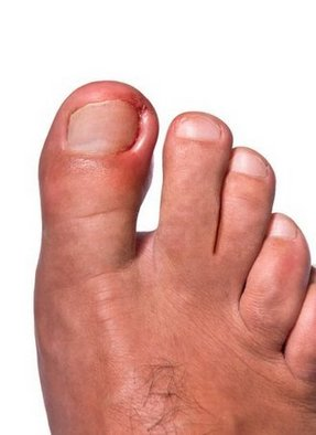 Latham Podiatrist | Latham Ingrown Toenails | NY | Capital Foot Specialists |