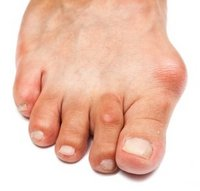 Latham Podiatrist | Latham Bunions | NY | Capital Foot Specialists |